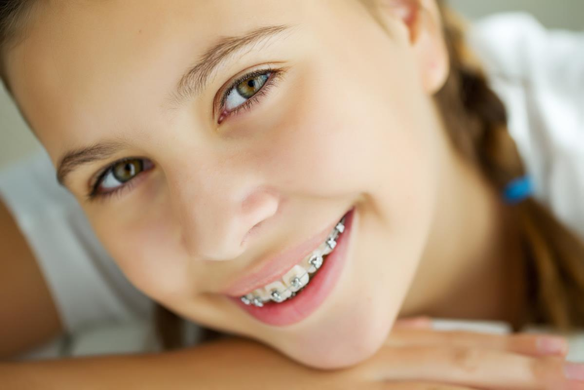 orthodontic services Daleville, VA